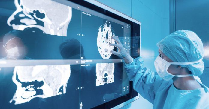 TIBCO PredictiveAnalytics e1604071449449 696x365 Q&A: Research at Washington University in St. Louis is Aimed at Developing a Precision Medicine Approach to Fight Neurological Diseases
